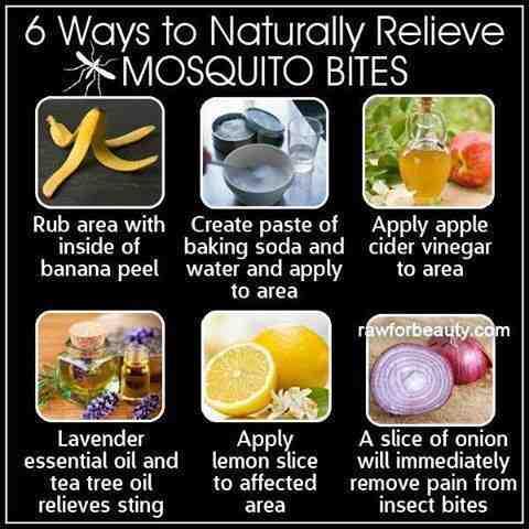 how to relieve mosquito bites